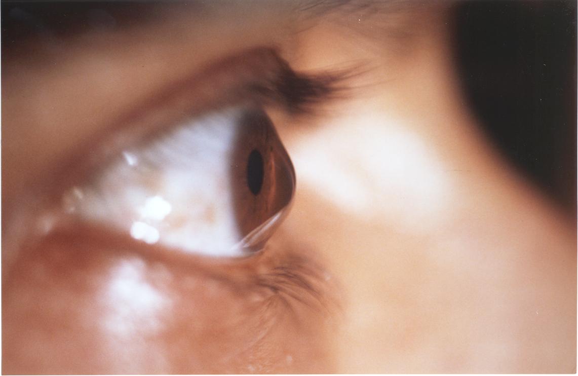 Les lentilles de contact adapté au kératocône